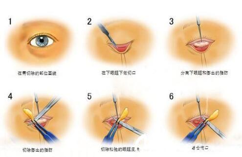 上海第九人民医院整形外科外切法祛眼袋