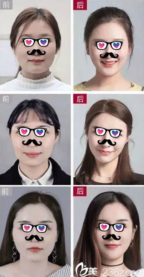 杭州珈禾顾飚瘦脸针真人案例