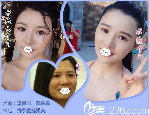 深圳鹏爱隆鼻案例对比图