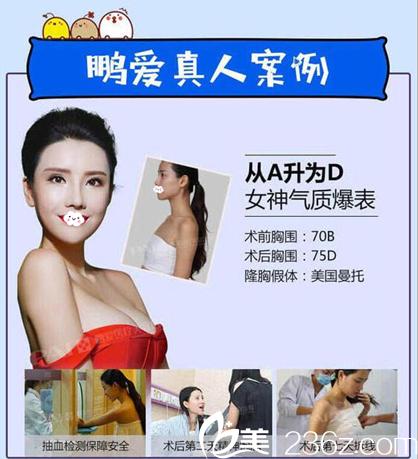 深圳鹏爱假体隆胸案例