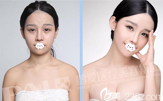 深圳鹏爱整形医院自体脂肪隆胸案例