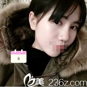 在泸州紫荆杨氏花7600元注射了2支海薇玻尿酸 我的塌鼻子大变样哟