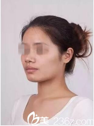 襄阳伊莱美整形美容门诊部王月华术前照片1