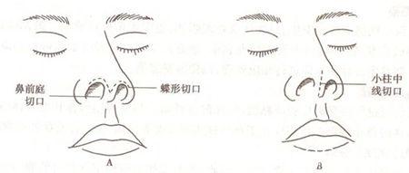 长春蓝天假体隆鼻手术切口