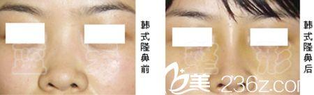 长春蓝天假体隆鼻手术案例