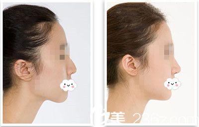 隆鼻手术原理