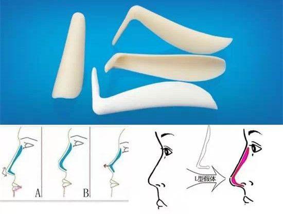 单纯L型假体隆鼻