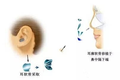 自体软骨移植为核心的鼻综合