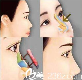 上海容妍医疗美容医院柴云自体肋软骨隆鼻
