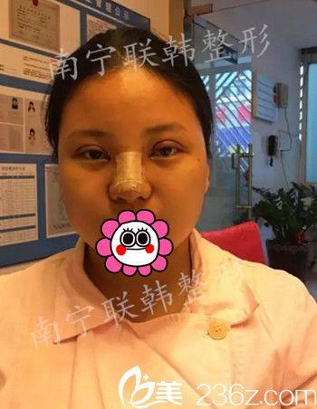 我在南宁联韩做眼鼻综合手术后1天