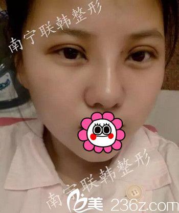 我在南宁联韩做眼鼻综合手术后7天