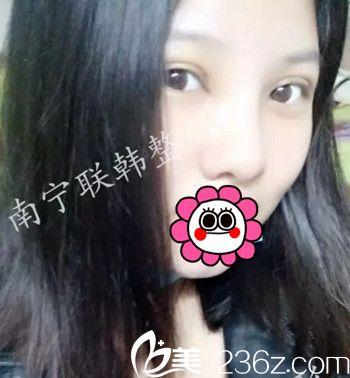 美护士在南宁联韩找王龙做眼部综合+鼻部综合手术后2周恢复过程