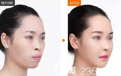 南宁联韩鼻综合手术案例