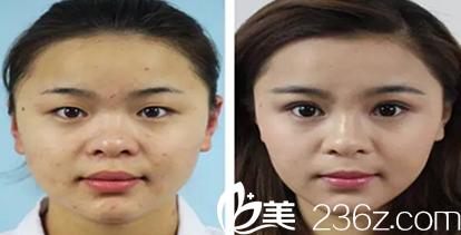 面部整形之后芜湖爱容咨询师变美案例展示