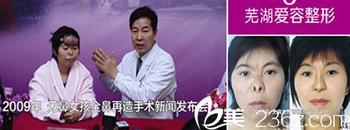 全鼻再造手术——芜湖爱容整形公益活动