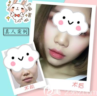 广州瑞港医疗整形美容门诊部刘伟峰M唇手术案例