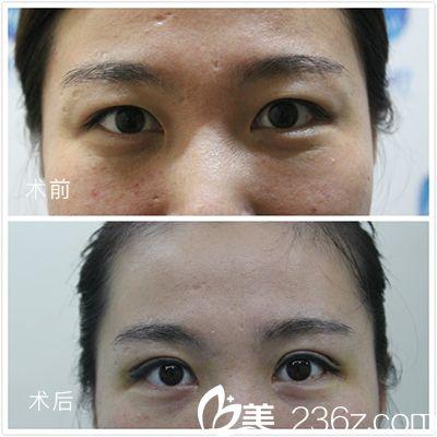 广州瑞港医疗整形美容门诊部刘伟峰医生双眼皮案例