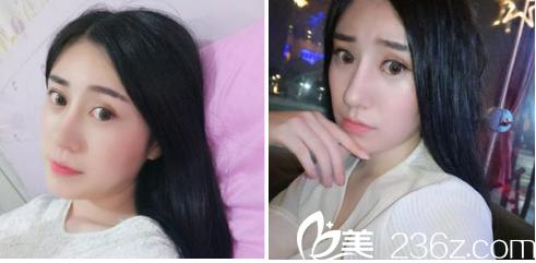 分享武汉同济协和医院孙家明给我做的鼻综合和全切双眼皮