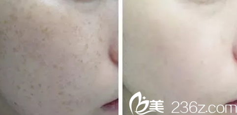 北京凯尔整形美容医院案例