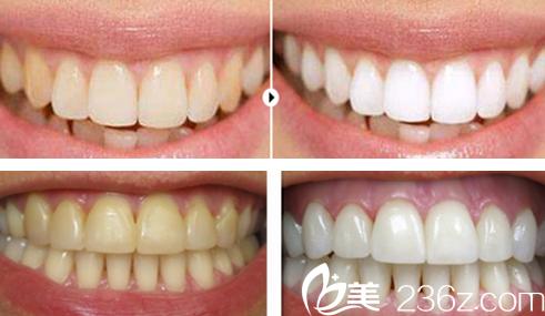 郑卫兵牙齿美白案例效果对比