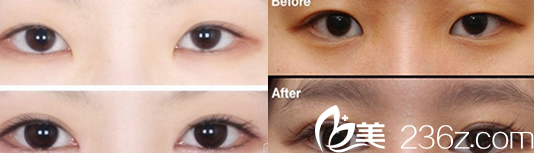 宁国人民医院汪珍珠双眼皮整形案例效果对比