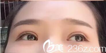 给大伙分享下武汉天佑医院李芸医生给我做的韩式三点双眼皮