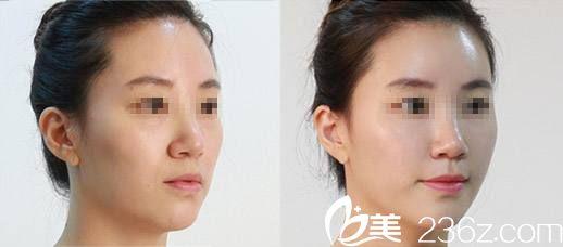 张媛媛医生注射玻尿酸案例