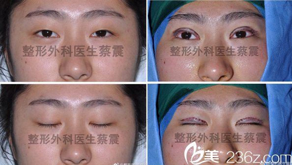 四川省人员医院整形外科蔡震全切双眼皮