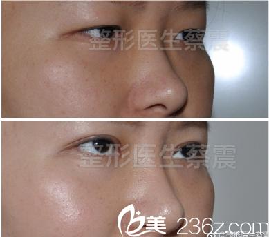蔡震全切双眼皮+硅胶隆鼻手术对比照