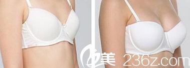 北京中关村医院皮肤美容科案例