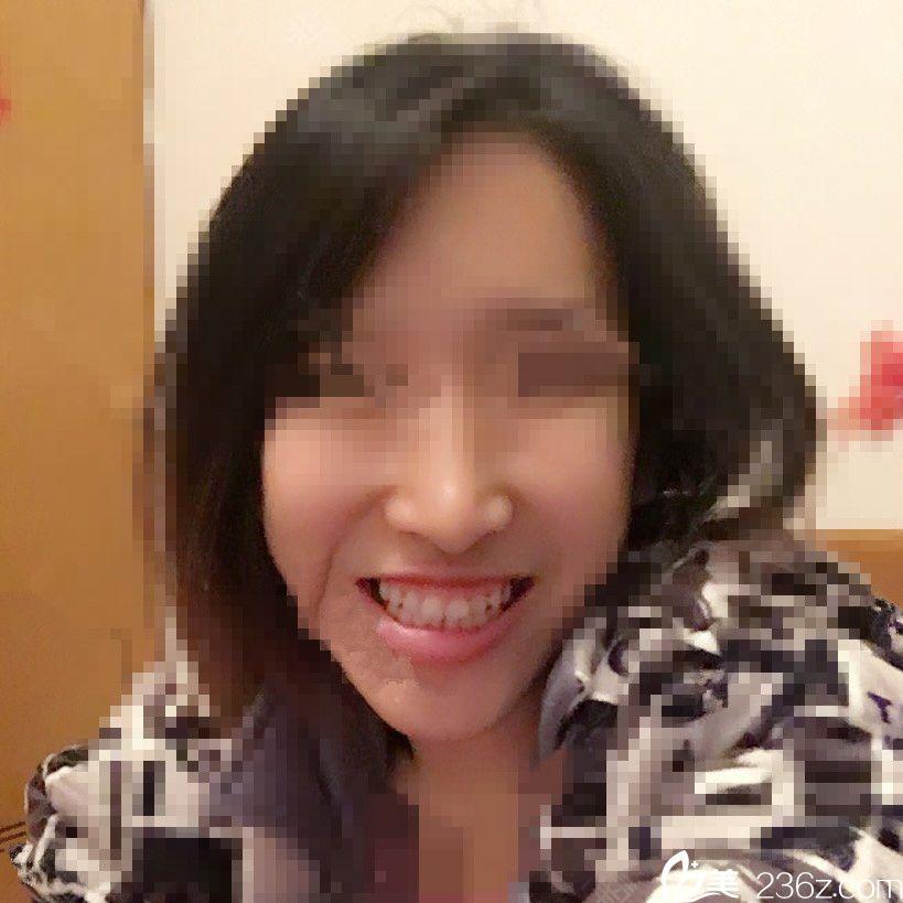 韩国CBK整形外科崔凤均术前照片1
