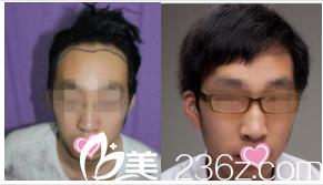 北京熙朵医疗美容医院案例