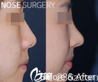 鼻子整形前后效果展示