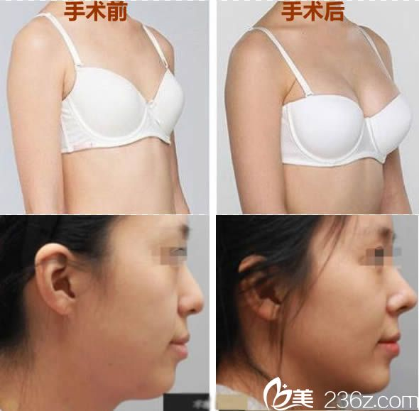厦门新开元邹燕林自体脂肪隆胸和鼻综合案例