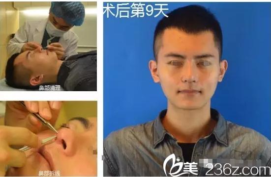 鼻根低、鼻头矮找常州德尔美客袁磊医生做鼻综合蜕变魅力型男