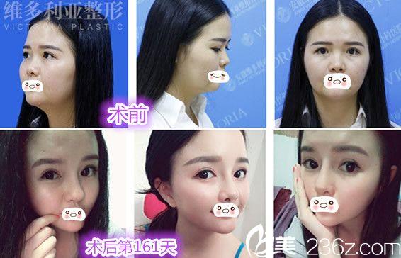 让安庆维多利亚整形美容医院的徐和林做双眼皮+鼻综合隆鼻+下颌角整形案例前后对比效果图展示