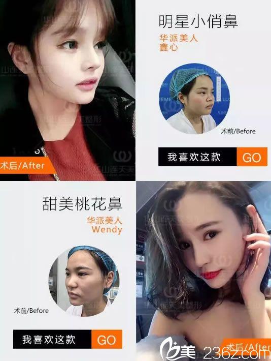 杭州华山连天美隆鼻手术案例