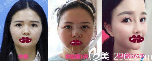 资深整形医生徐和林鼻综合隆鼻+下颌角整形案例恢复效果图展示