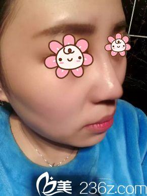 生完娃我也去新疆A优医美-王蛟整形做个鼻综合+面部吸脂装装嫩