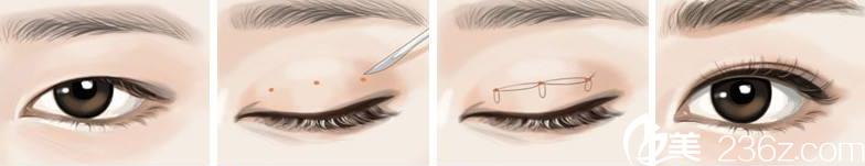 无痕翘睫毛双眼皮术原理