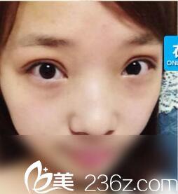 在郑州元素美学做的双眼皮 大家能看出是割的吗?