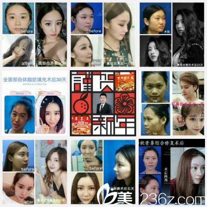 深圳江南春天王大太医生隆鼻案例组图