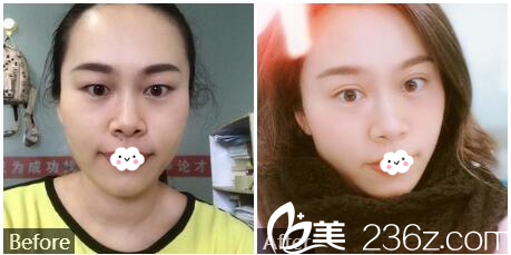 深圳江南春天整形医院李钢双眼皮对比案例