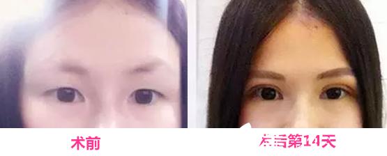 芜湖东方美莱坞整形怎么样?看高士乾全切双眼皮+植发际线整形案例