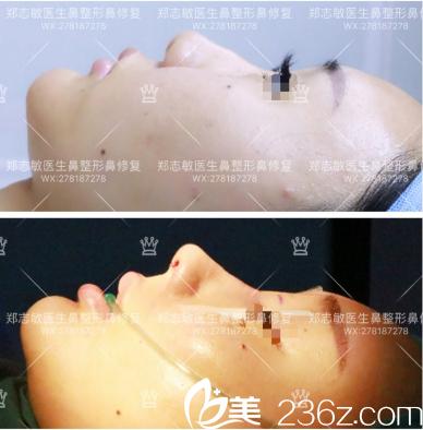 东莞美立方郑志敏做的肋软骨鼻综合修复案例图
