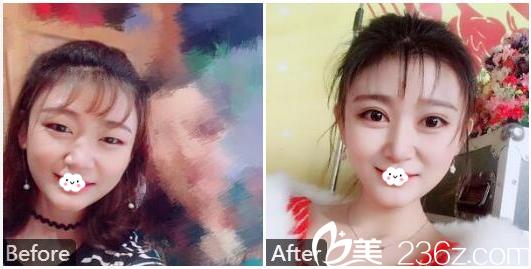 广州美莱整形医院陈贵宗做的双眼皮案例