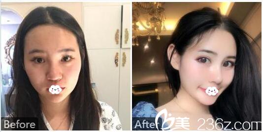广州美莱整形医院罗延平膨体隆鼻和自体软骨隆鼻案例