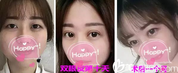 姜春仁医生双眼皮整形效果案例