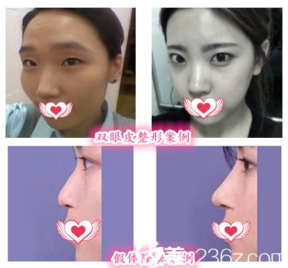 在芜湖华美整形美容医院做全切双眼皮整形案例+假体隆鼻案例对比图