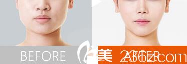 北京薇琳医疗美容医院韩楚医生注射瘦脸案例